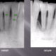 LANAP Laser Periodontist lecture Before and After Gum Surgery