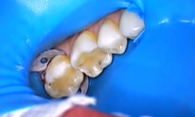 Replacing old dental fillings with cosmetic crowns