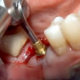 Molar Extraction and Immediate Implant Placement