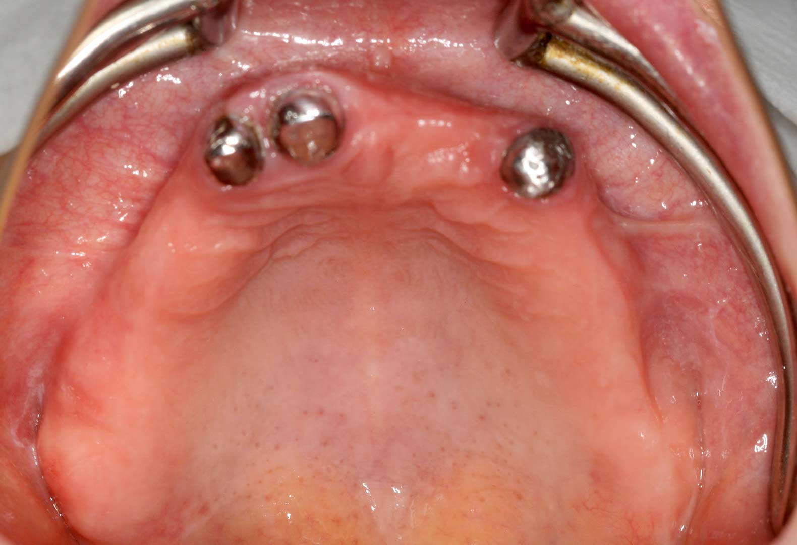Case-Placement of implants with Osseodensification technique-3
