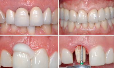 How to achieve a stable esthetic results with implant supported restorations