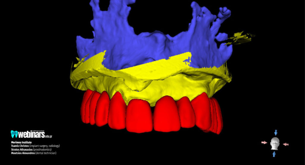 Full mouth Placement of implants with Osseodensification technique-Step-6